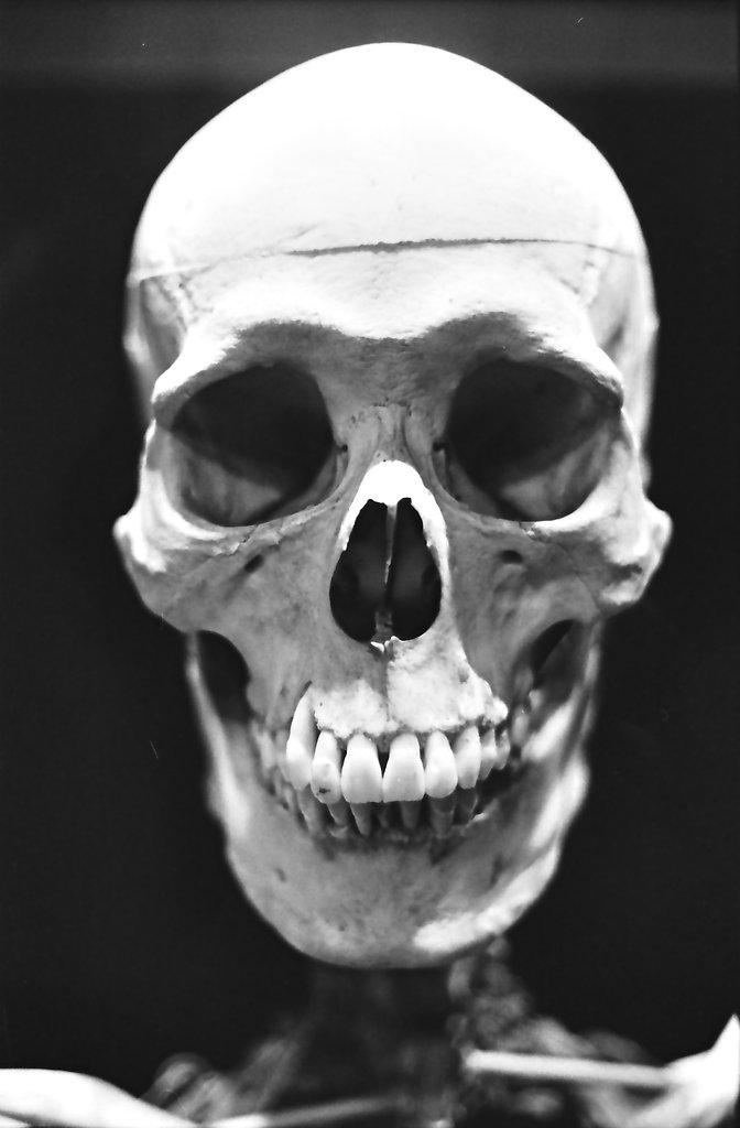 Dead & Still